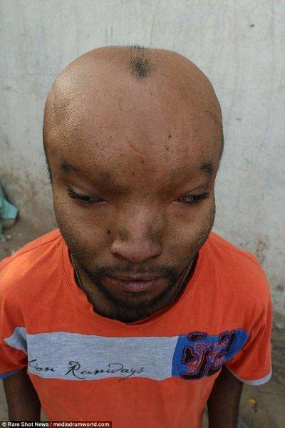 В Индии парень постепенно превращается в инопланетянина