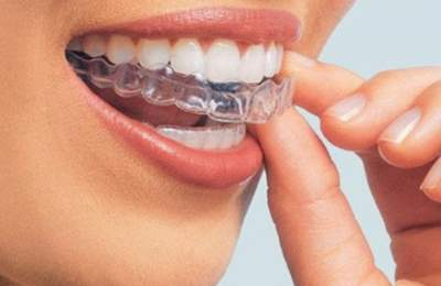 Стоматологи назвали самые главные мифы о зубах